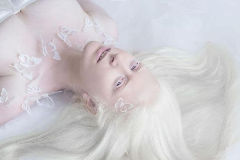 35 людей-альбиносов, гипнотизирующих своей магической красотой