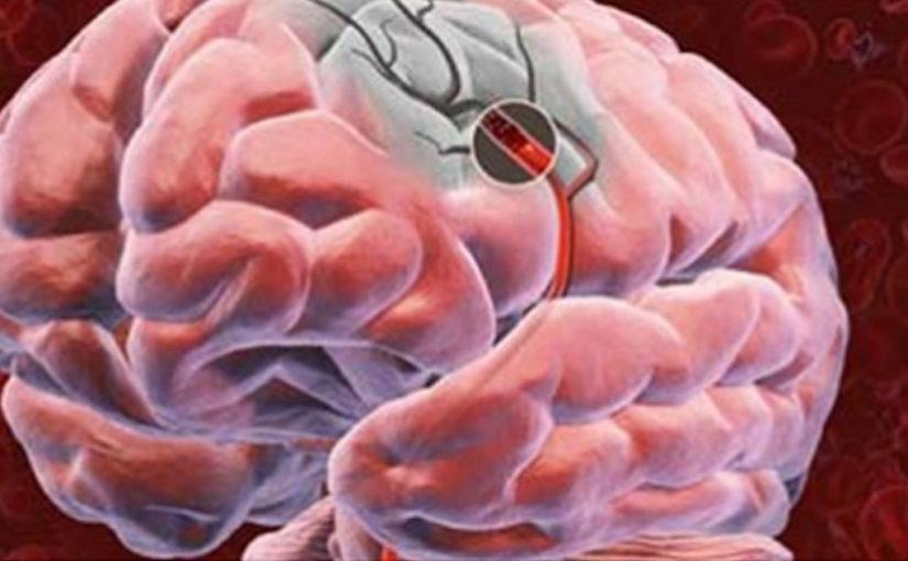 Пять советов для улучшения кровоснабжения головного мозга