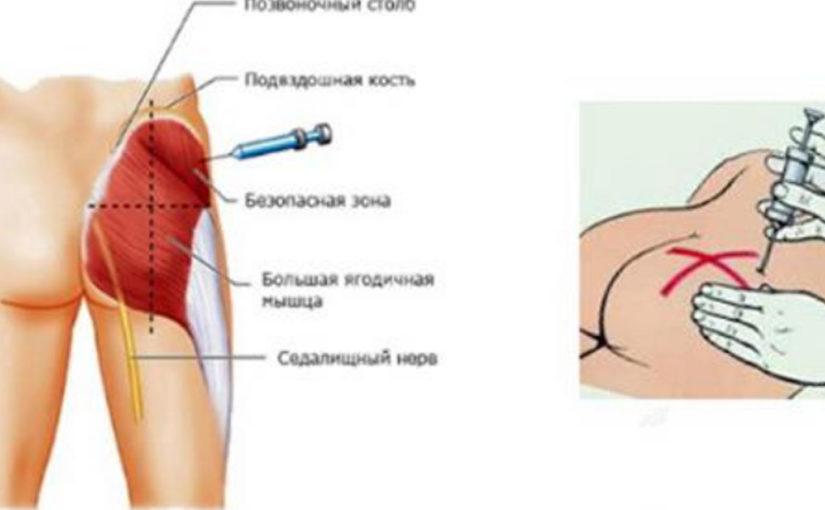 Как правильно делать инъекции? Полезная и нужная информация для всех!