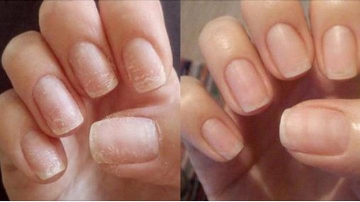 Супер способ восстановить ногти после наращивания или гель-лака